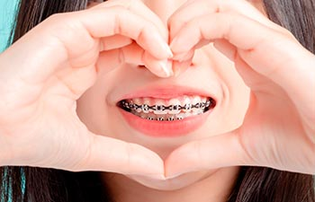 Young Asian woman wearing dental braces.